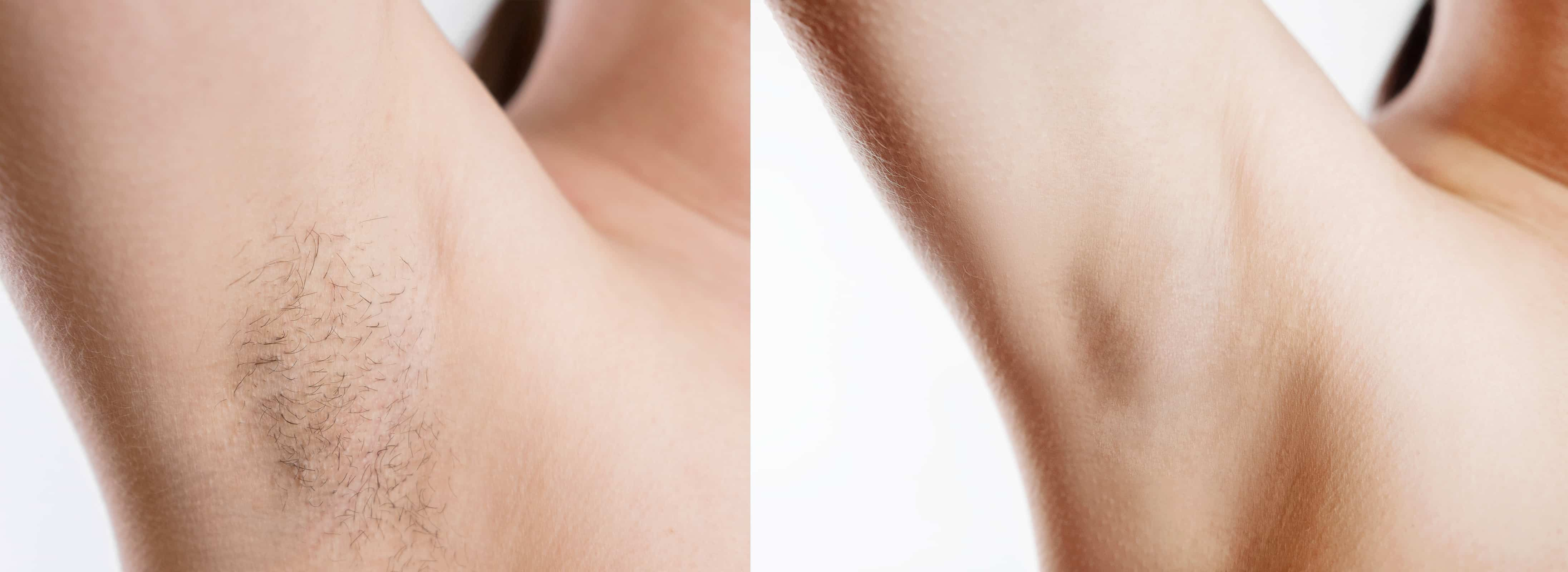 Before and after image of laser hair removal on armpit